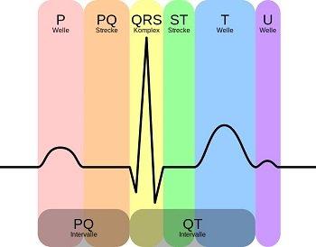 EKG-Welle